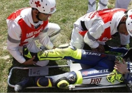 Rossi cade, frattura scomposta ed esposta di tibia e perone