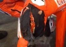 Il ginocchio di Nicky Hayden dopo il GP d'Indianapolis
