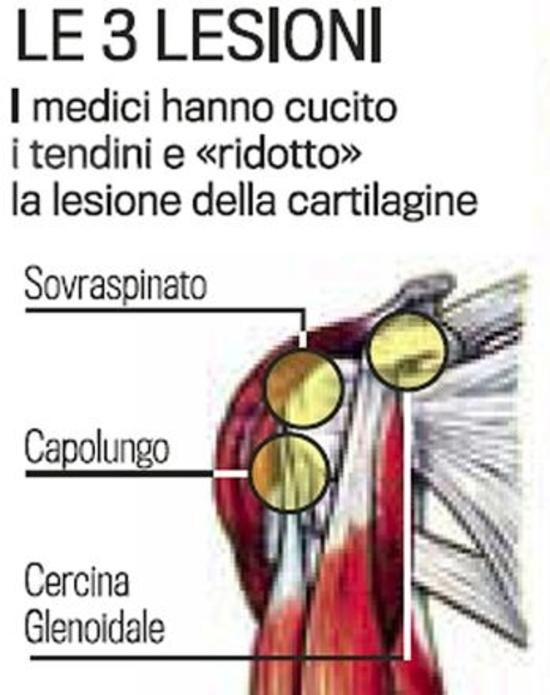 Effettuata con successo l'operazione alla spalla di Valentino Rossi